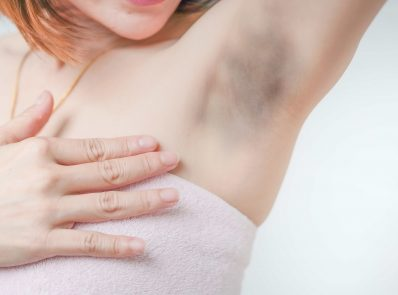 Dark underarms? Here is what you need to know background image