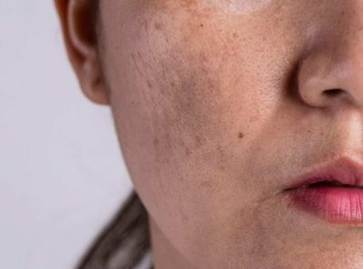 Hyperpigmentation: Causes, Prevention and Remedies background image