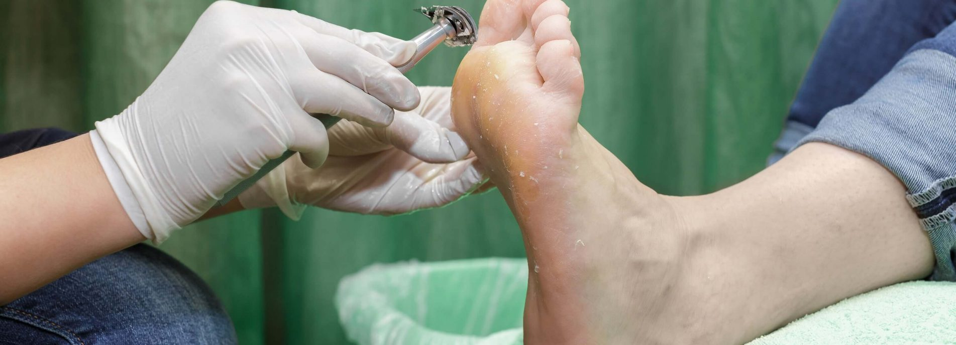 How to treat corns on feet: Home and medical remedies