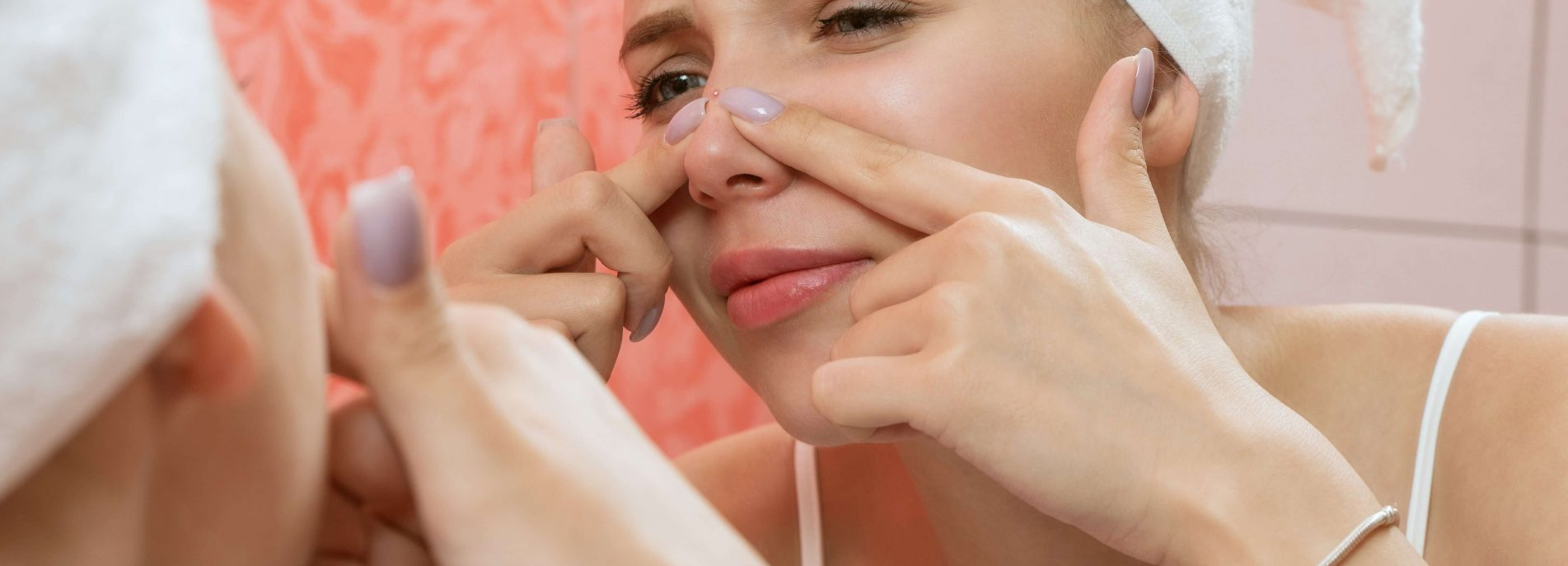 How to get rid of pimples naturally? 5 top ways