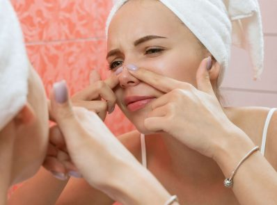 How to get rid of pimples naturally? 5 top ways background image
