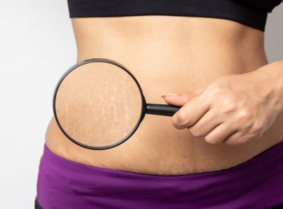 What are stretch marks? All you need to know about causes and treatments background image