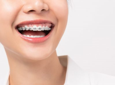 6 Tips To Make Wearing Braces More Comfortable background image